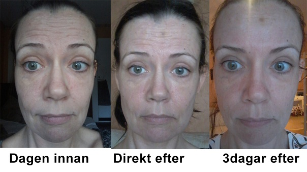 Botoxbehandling